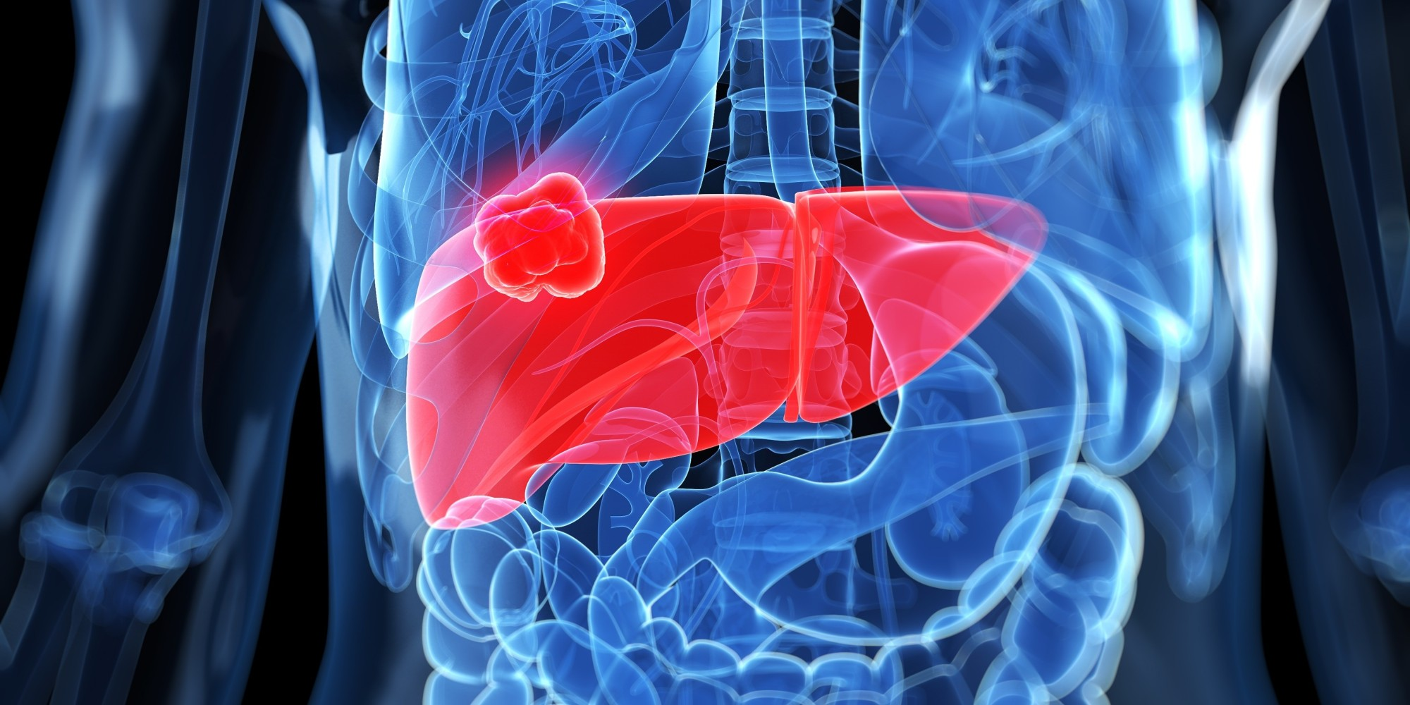 Treatment of cancer metastatic to the liver herbs